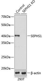 KO Validated Antibodies 2 Anti-SEPHS1 Antibody CAB19920KO Validated