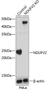 KO Validated Antibodies 2 Anti-NDUFV2 Antibody CAB19936KO Validated