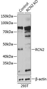 KO Validated Antibodies 2 Anti-RCN2 Antibody CAB19943KO Validated