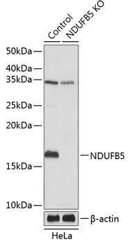 KO Validated Antibodies 2 Anti-NDUFB5 Antibody CAB19953KO Validated