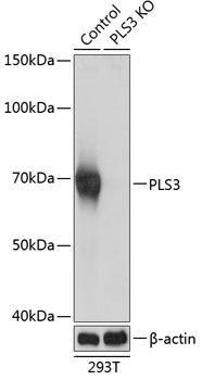 KO Validated Antibodies 2 Anti-PLS3 Antibody CAB19956KO Validated