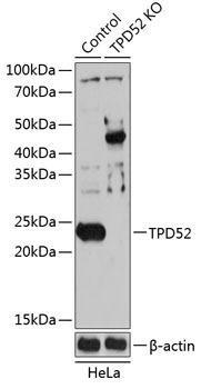 KO Validated Antibodies 2 Anti-TPD52 Antibody CAB19968KO Validated