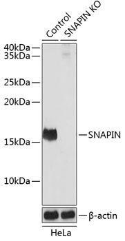 KO Validated Antibodies 2 Anti-SNAPIN Antibody CAB19980KO Validated