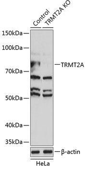 KO Validated Antibodies 2 Anti-TRMT2A Antibody CAB19987KO Validated