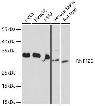 Signal Transduction Antibodies 3 Anti-RNF126 Antibody CAB20015