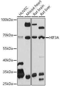 Cell Biology Antibodies 15 Anti-HIF3A Antibody CAB20020