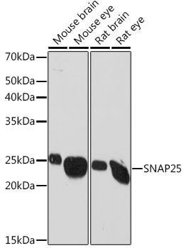 Cell Biology Antibodies 17 Anti-SNAP25 Antibody CAB2234