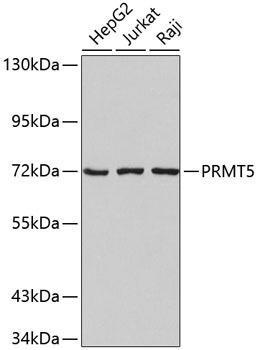 Cell Biology Antibodies 17 Anti-PRMT5 Antibody CAB2290