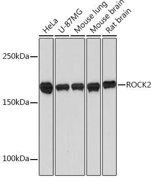 Cell Biology Antibodies 17 Anti-ROCK2 Antibody CAB2395