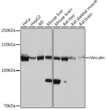 Cell Biology Antibodies 17 Anti-Vinculin Antibody CAB2752