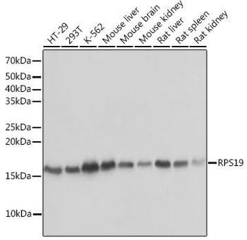 Cell Biology Antibodies 17 Anti-RPS19 Antibody CAB3675