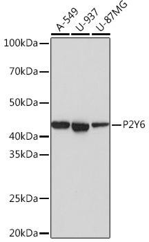 Cell Biology Antibodies 17 Anti-P2Y6 Antibody CAB3708