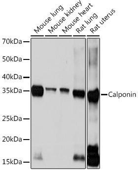 Cell Biology Antibodies 17 Anti-Calponin Antibody CAB3734
