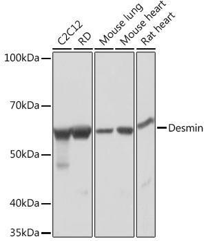 Cell Biology Antibodies 17 Anti-Desmin Antibody CAB3736