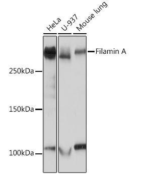 Cell Biology Antibodies 17 Anti-Filamin A Antibody CAB3738