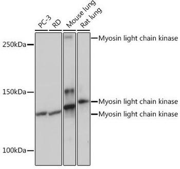 Cell Biology Antibodies 17 Anti-Myosin light chain kinase Antibody CAB3835