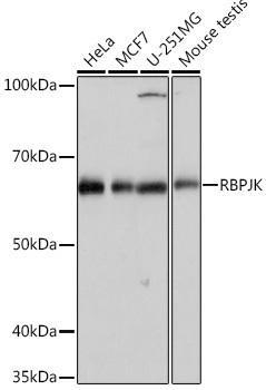Signal Transduction Antibodies 3 Anti-RBPJK Antibody CAB4081