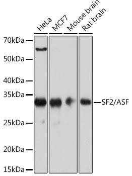 Epigenetics and Nuclear Signaling Antibodies 5 Anti-SF2/ASF Antibody CAB4091