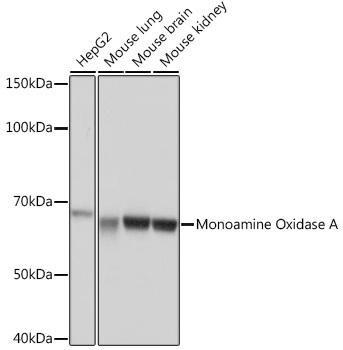 Metabolism Antibodies 3 Anti-Monoamine Oxidase A Antibody CAB4105