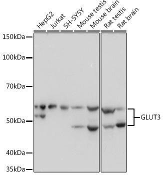 Signal Transduction Antibodies 3 Anti-GLUT3 Antibody CAB4137
