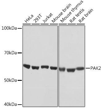 Cell Death Antibodies 2 Anti-PAK2 Antibody CAB4553