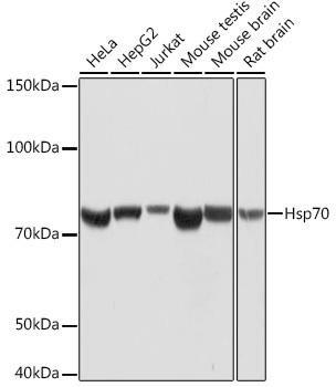 Cell Biology Antibodies 15 Anti-Hsp70 Antibody CAB4777