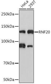 Signal Transduction Antibodies 3 Anti-RNF20 Antibody CAB4784