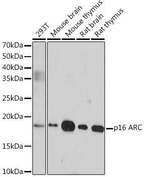 Cell Biology Antibodies 17 Anti-p16 ARC Antibody CAB4794