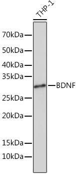 Cell Biology Antibodies 17 Anti-BDNF Antibody CAB4873