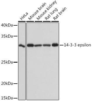 Immunology Antibodies 3 Anti-14-3-3 epsilon Antibody CAB4933