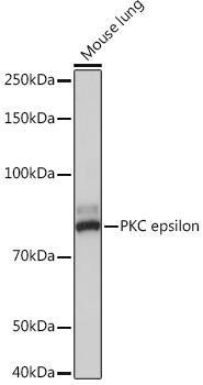Cell Biology Antibodies 17 Anti-PKC epsilon Antibody CAB4998