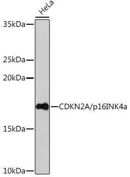 KO Validated Antibodies 2 Anti-CDKN2A/p16INK4a KO Validated Antibody CAB5025
