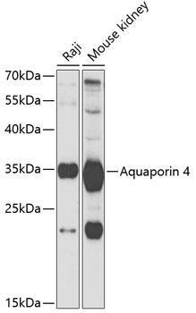 Signal Transduction Antibodies 3 Anti-Aquaporin 4 Antibody CAB5665