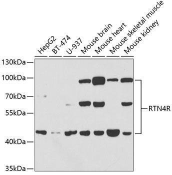 Cell Biology Antibodies 15 Anti-RTN4R Antibody CAB5847
