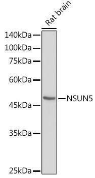 Cell Biology Antibodies 15 Anti-NSUN5 Antibody CAB5992