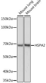Developmental Biology Anti-HSPA2 Antibody CAB6652