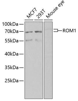 Cell Biology Antibodies 15 Anti-ROM1 Antibody CAB6970