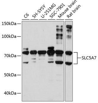 Cell Biology Antibodies 15 Anti-SLC5A7 Antibody CAB8247