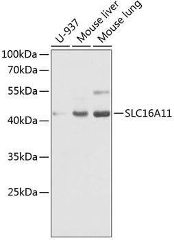 Cell Biology Antibodies 15 Anti-SLC16A11 Antibody CAB8599