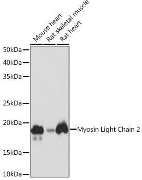 Cell Biology Antibodies 17 Anti-Myosin Light Chain 2 Antibody CAB8742