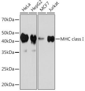 Cell Biology Antibodies 15 Anti-MHC class I Antibody CAB8754