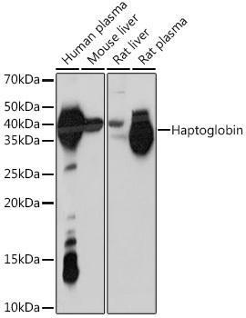 Immunology Antibodies 3 Anti-Haptoglobin Antibody CAB8778