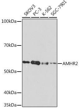 Cell Biology Antibodies 17 Anti-AMHR2 Antibody CAB8813