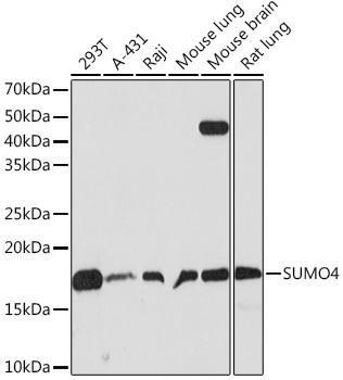 Signal Transduction Antibodies 3 Anti-SUMO4 Antibody CAB9016