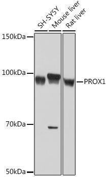 Cell Biology Antibodies 17 Anti-PROX1 Antibody CAB9047