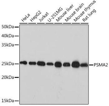 Cell Biology Antibodies 17 Anti-PSMA2 Antibody CAB9182