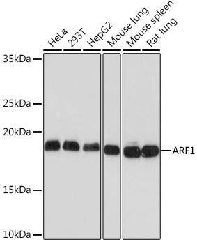 Cell Biology Antibodies 17 Anti-ARF1 Antibody CAB9195