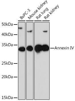 Cell Biology Antibodies 17 Anti-Annexin IV Antibody CAB9203
