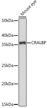 Signal Transduction Antibodies 3 Anti-CRALBP Antibody CAB9265