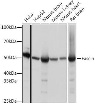 Cell Biology Antibodies 17 Anti-Fascin Antibody CAB9566